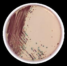 E.coli O157:H7 chromogenic media